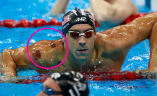 Berkeley Accupunture Phelps with cupping marks