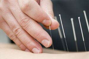 Acupunture treatment with needles does not hurt.