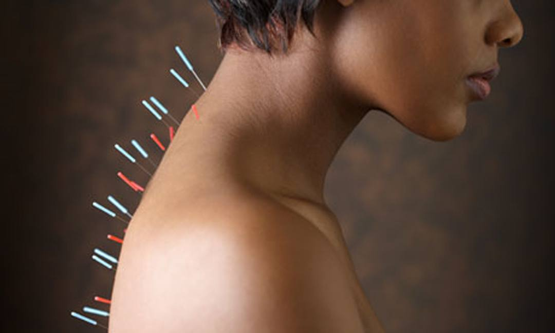 Acupuncture treatment Berkely for back pain, migraine headaches and overall health.
