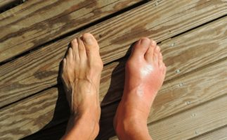 Acupuncture can treat gout along with Chinese Medicine. Contact Tao to Wellness in Berkeley for treating gout with acupuncture and herbs.